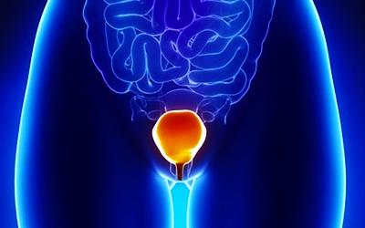 cistite UTI infezione vie urinarie d mannosio mirtillo rosso
