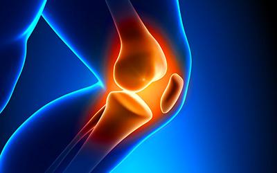 vr medical ariccia artrite